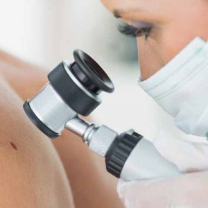 Cassis surgical dermatology