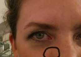 Image of a woman with a dark spot on her face circled